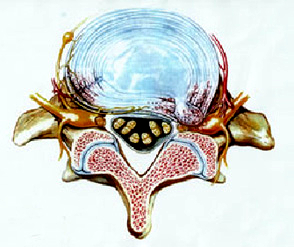 herniated disc is a disc that extrudes out of the annlus. It is also