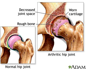 Hip Joint Arthritis