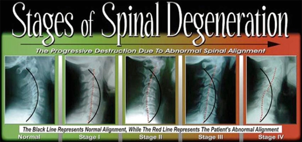 Stage of Spinal Degeneration